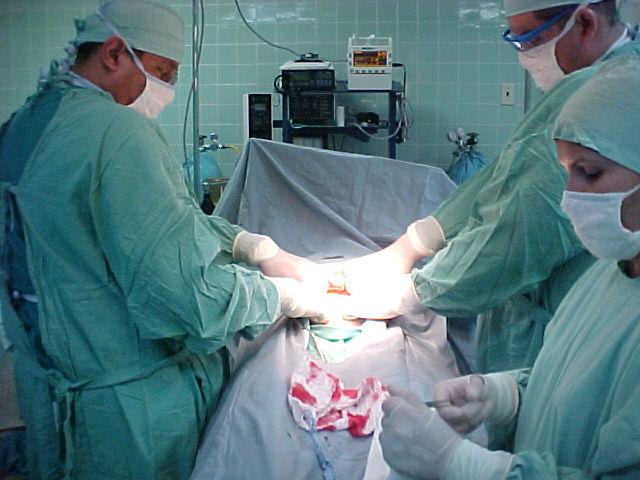 Los bebés nacidos por cesárea son más propensos a ciertas complicaciones