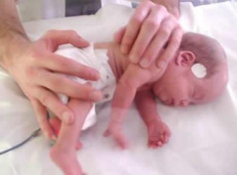 Los bebés prematuros tienen más riesgo de sufrir problemas cardíacos en la adultez