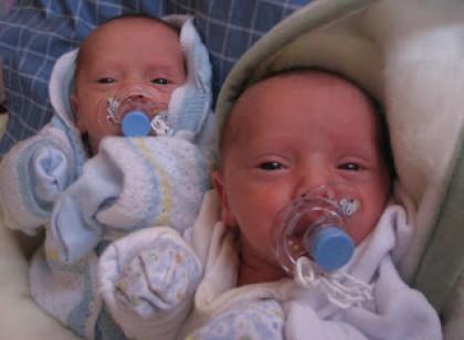 Se han duplicado los casos de anomalías congénitas en bebés nacidos en partos múltiples